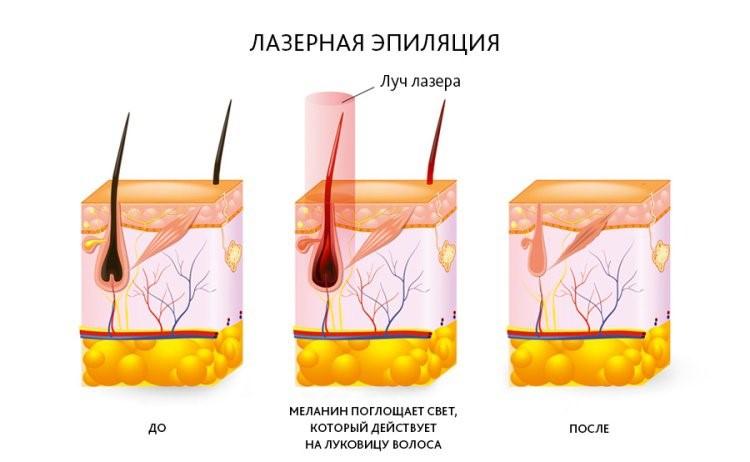 Лазерная эпиляция - Противопоказания и последствия